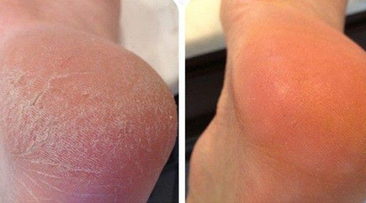 Voici comment se débarrasser rapidement des pieds secs et fendillés