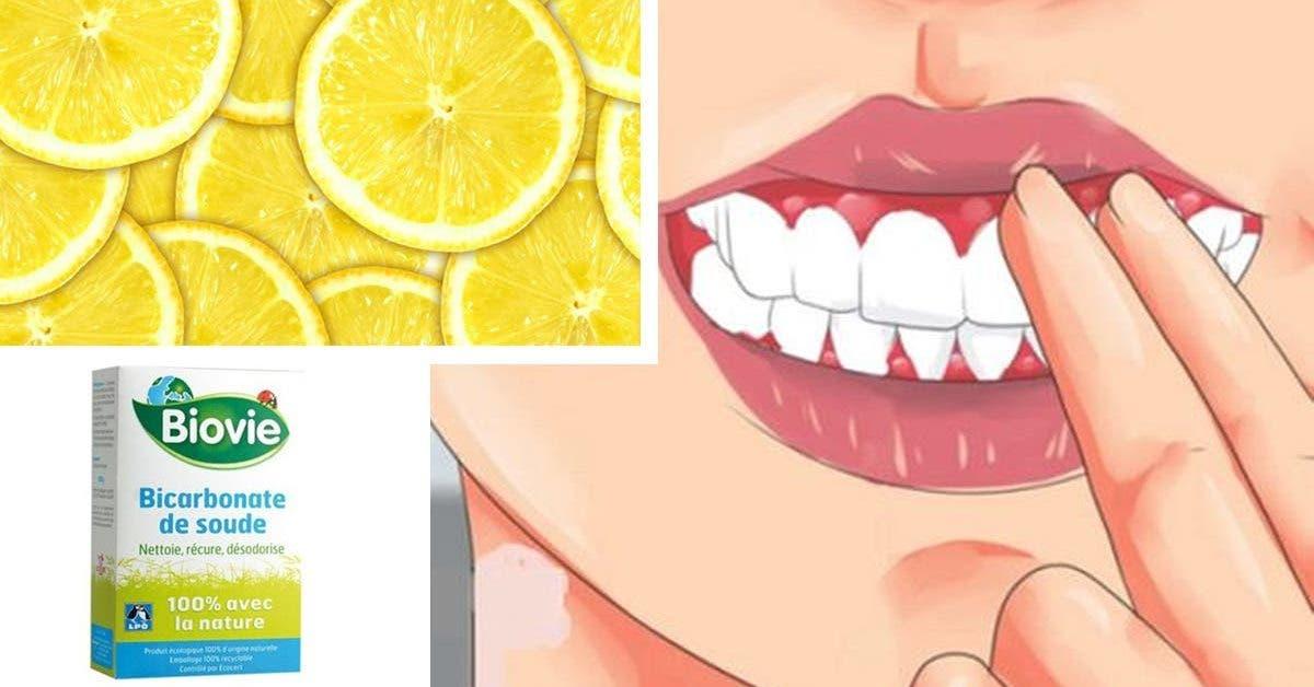 problème dentaire