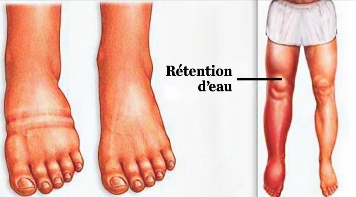 Remèdes naturels pour les chevilles, jambes et pieds gonflés