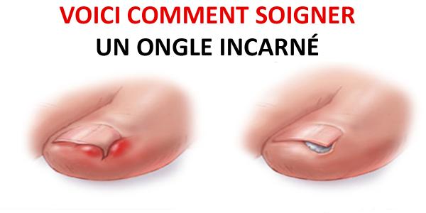 Voici comment soigner un ongle incarné