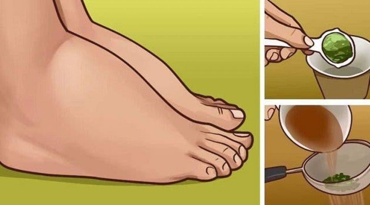Voici comment soigner vos chevilles et pieds enflés naturellement. Ca marche !