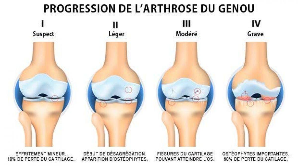 Voici comment soigner vos douleurs d'arthrose naturellement