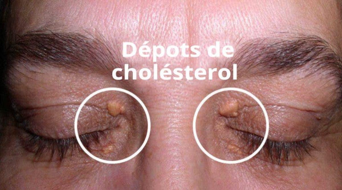 Voici Comment Supprimer Les Dépôts De Cholestérol Autour Des