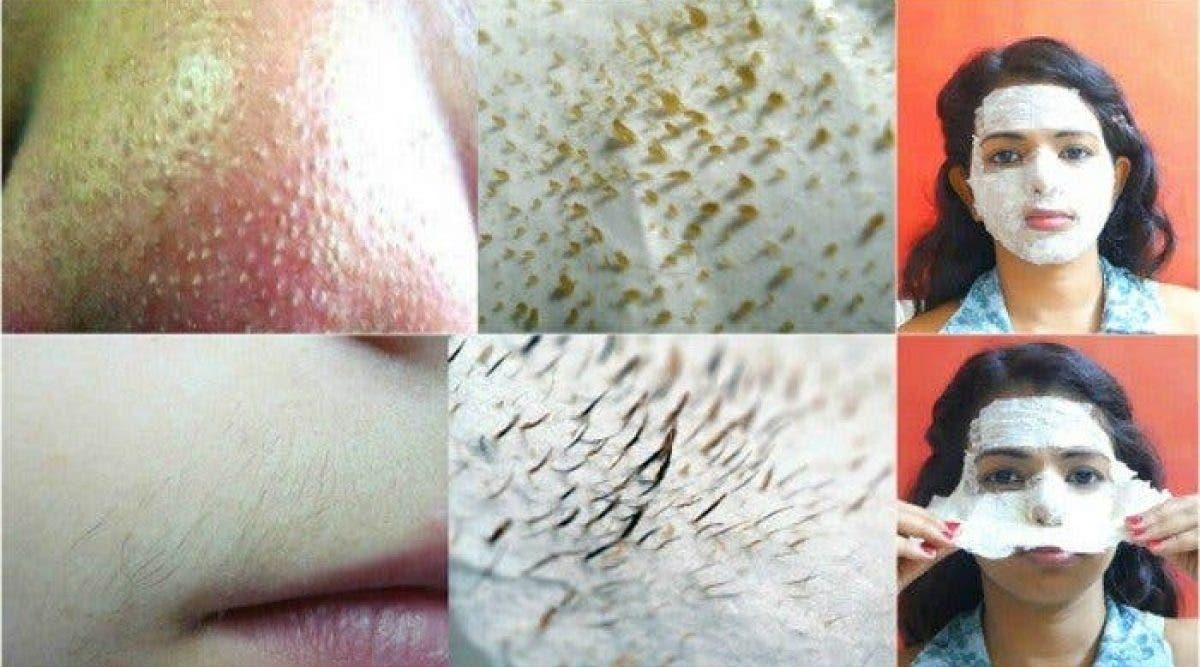 Voici comment supprimer les poils et les points noirs du visage ! Vous n'avez jamais rien vu de tel !