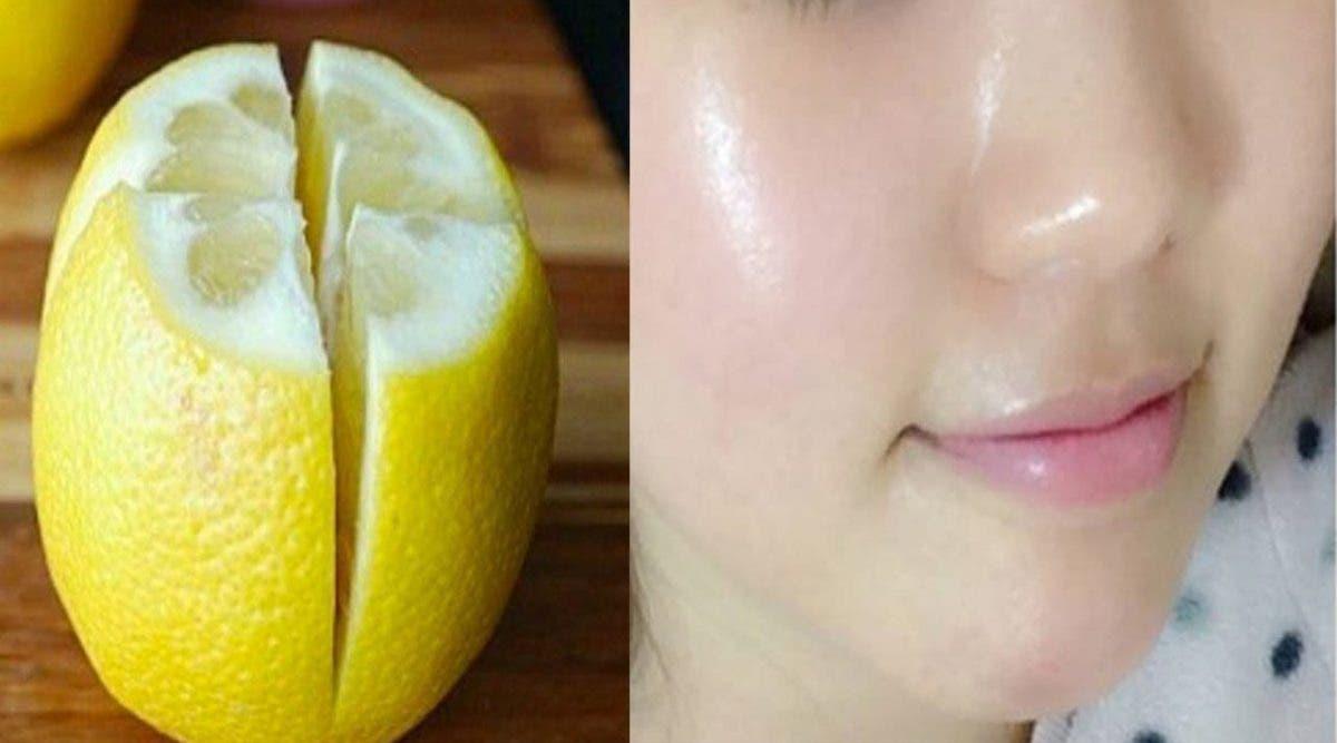 Voici comment utiliser le citron pour enlever les taches de votre visage et avoir une peau de bébé
