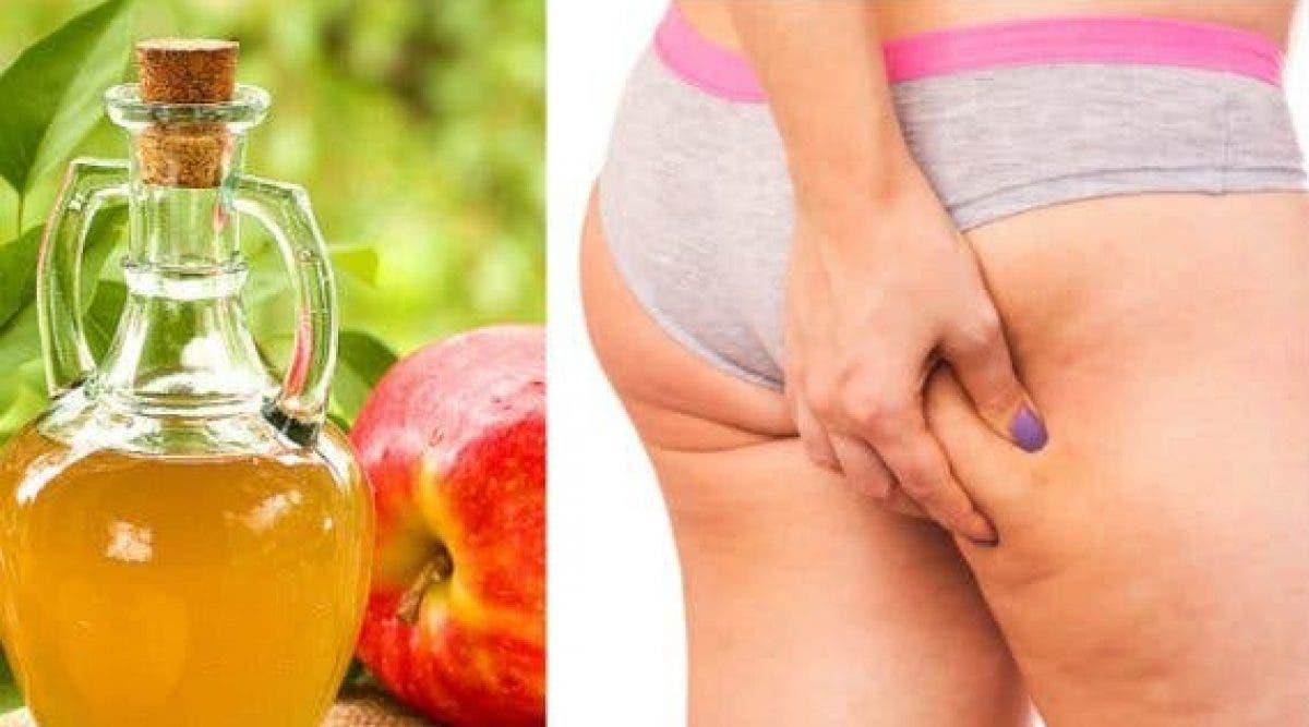 Voici comment utiliser le vinaigre de cidre de pomme pour éliminer la cellulite