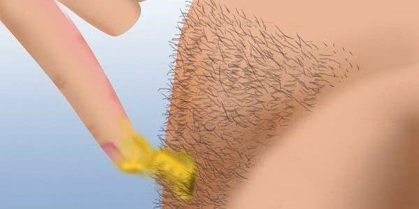 Voici comment vous pouvez enlever les poils de votre corps
