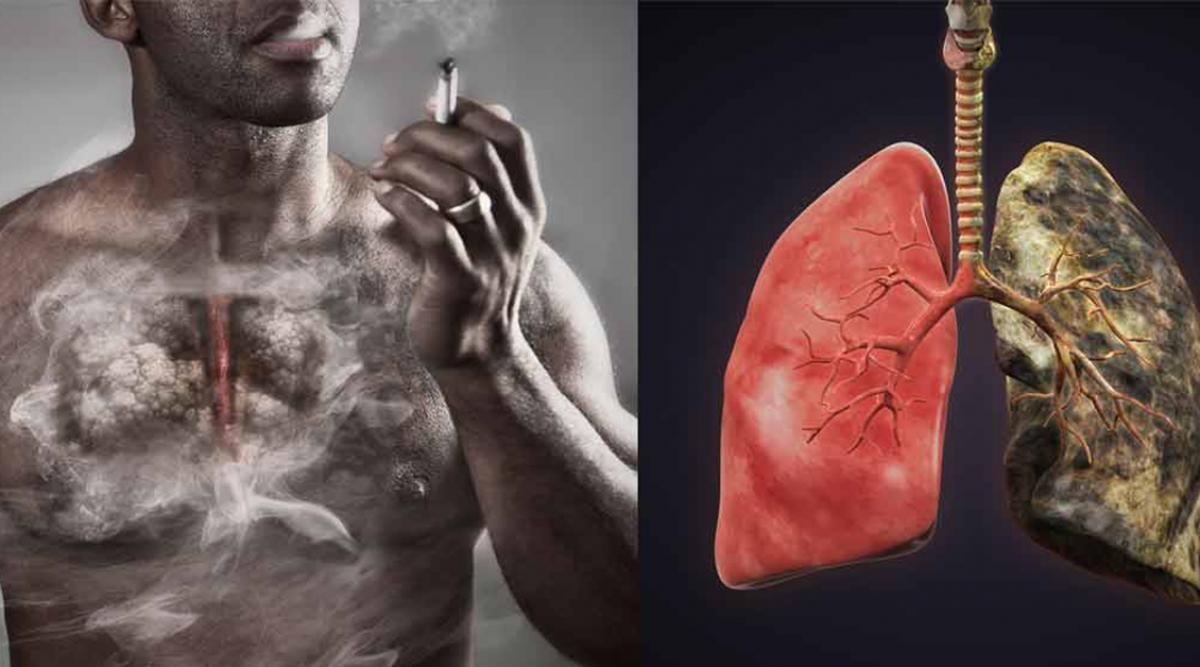 Voici la différence entre des poumons sains et ceux d'un fumeur
