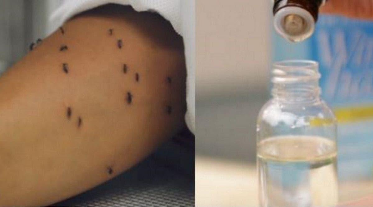 Les moustiques ne veulent pas vous laisser tranquille ? Voici la solution qui marche mieux que tous les insecticides