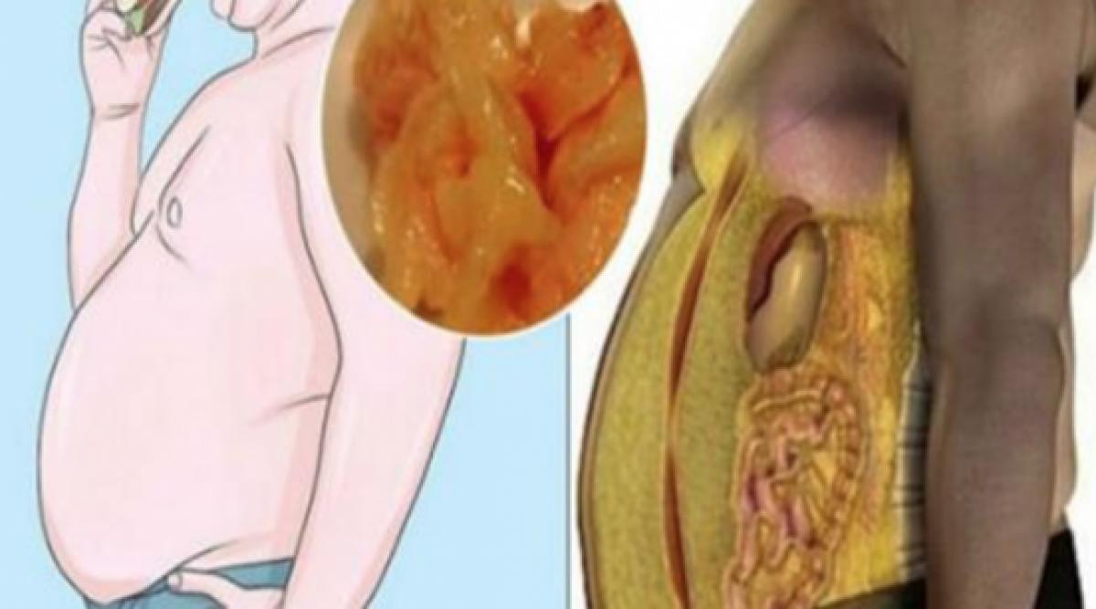 Voici le secret d'un médecin célèbre pour se débarrasser de la graisse abdominale
