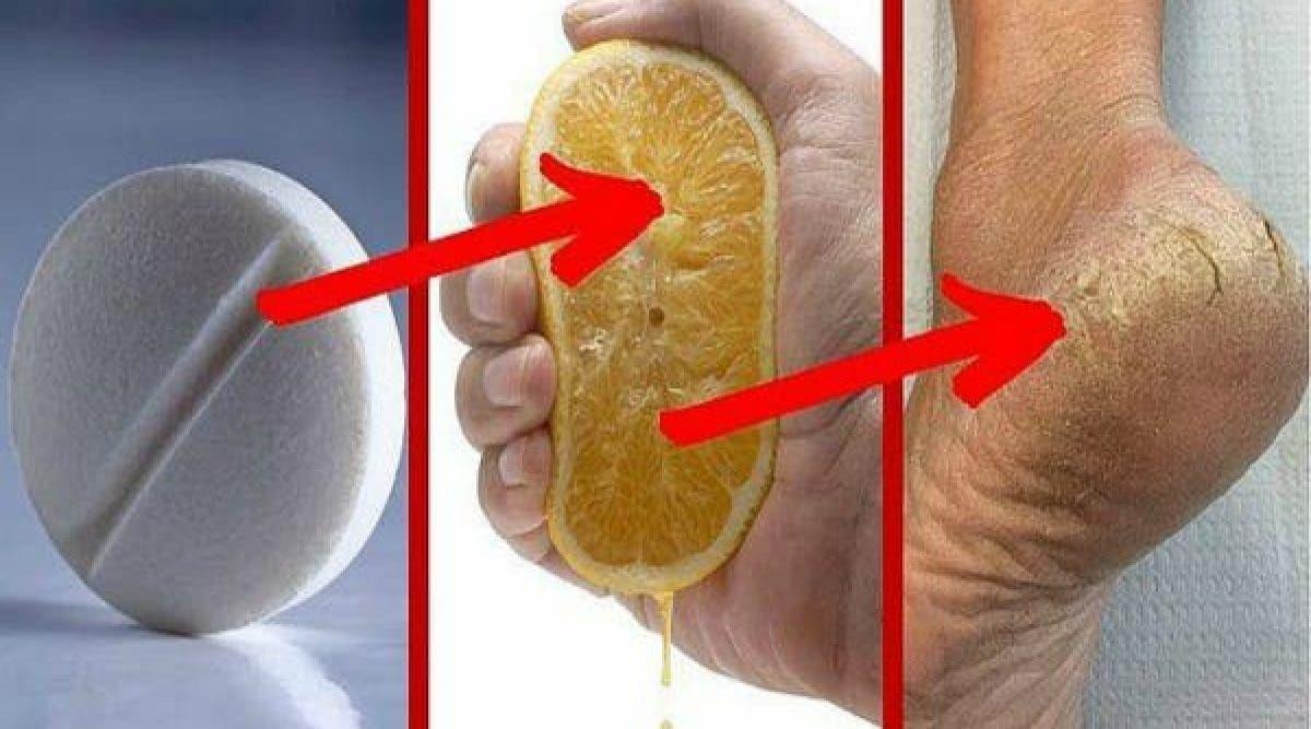 Voici le secret pour éliminer les callosités et les champignons des pieds en 2 jours