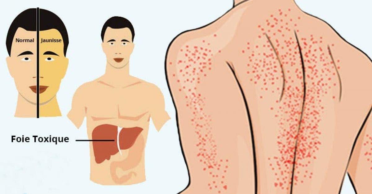 symptômes d'un foie endommagé