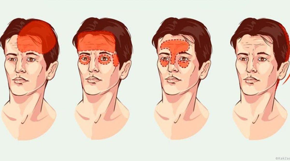 Découvrez les types de maux de tête les plus courants et comment les traiter naturellement