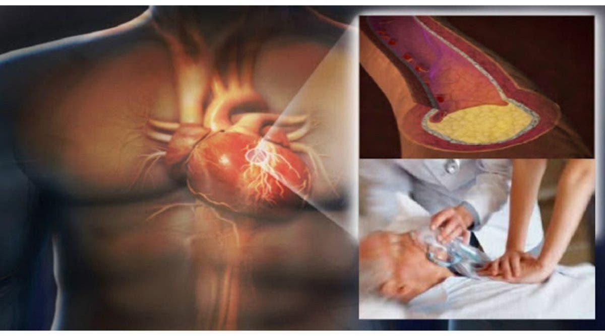 Voici les 5 aliments qui provoquent les crises cardiaques