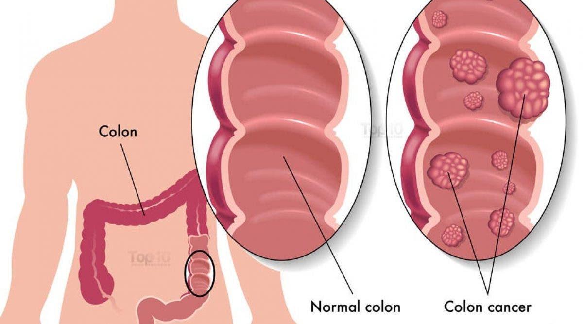 Voici les symptômes du cancer de l'estomac à ne surtout pas négliger