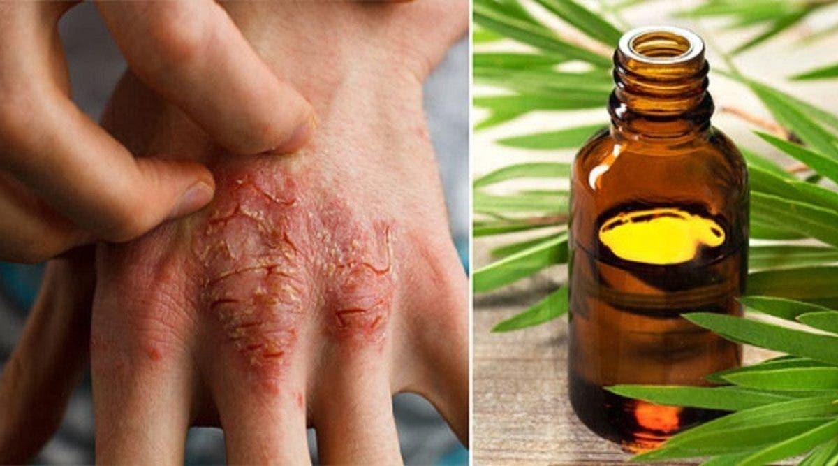 l'huile qui combat l'acné