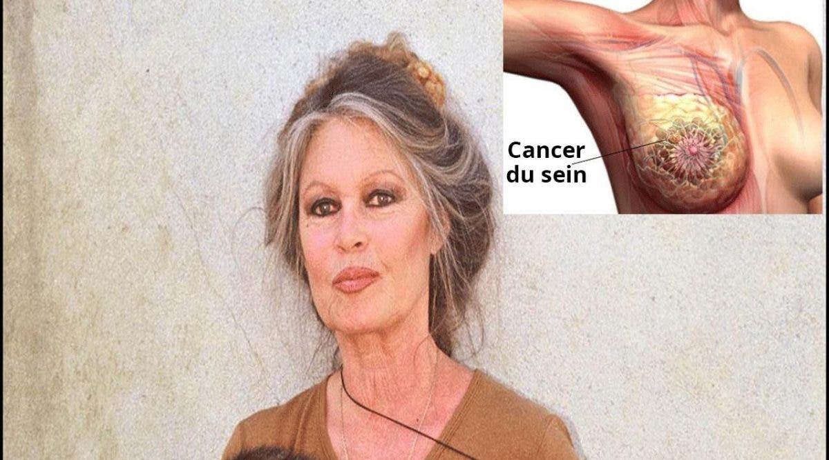Voici pourquoi Brigitte Bardot a refusé la chimiothérapie pour traiter son cancer
