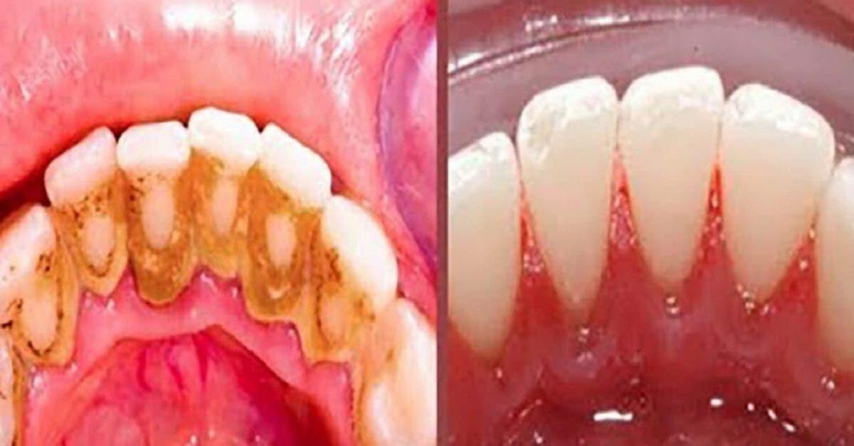 Voici un remède simple et efficace pour éliminer la plaque dentaire à la maison