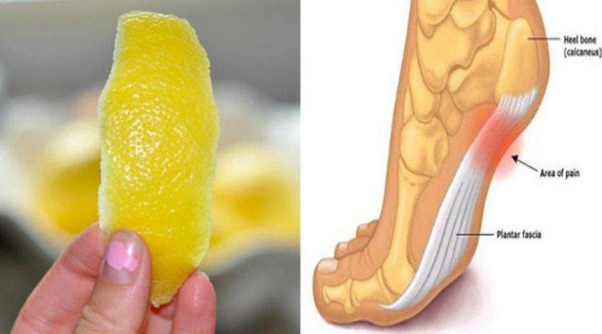 Voici une ancienne astuce aux zestes de citron pour éliminer les douleurs articulaires