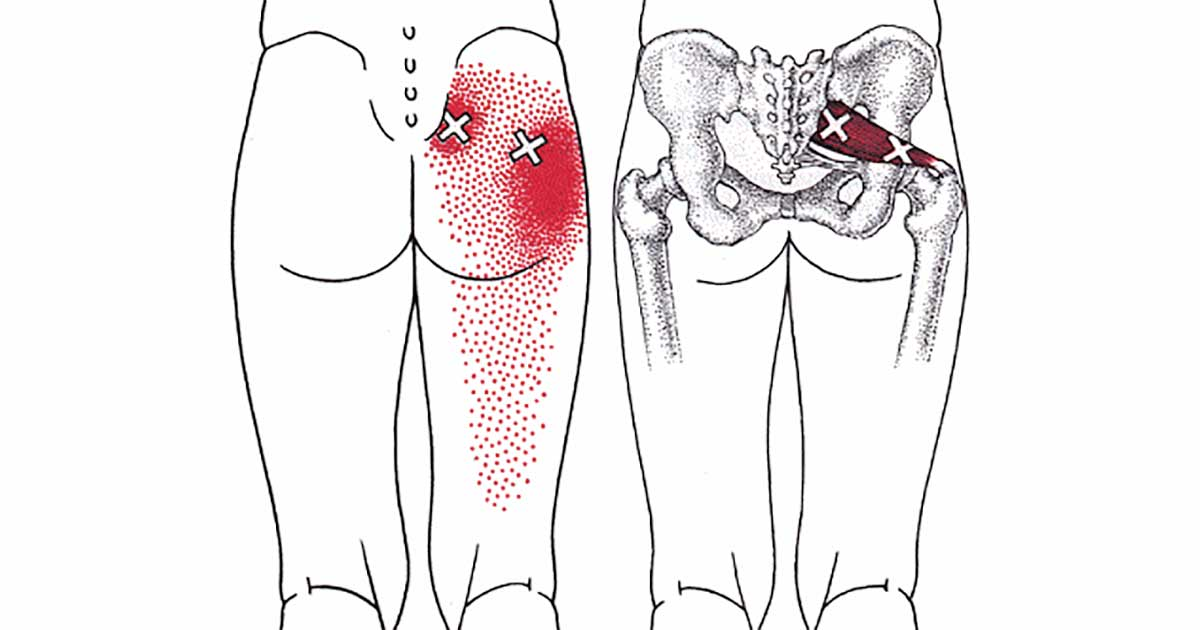voici une astuce simple pour se d barrasser des douleurs du dos de la hanche des fesses et des. Black Bedroom Furniture Sets. Home Design Ideas