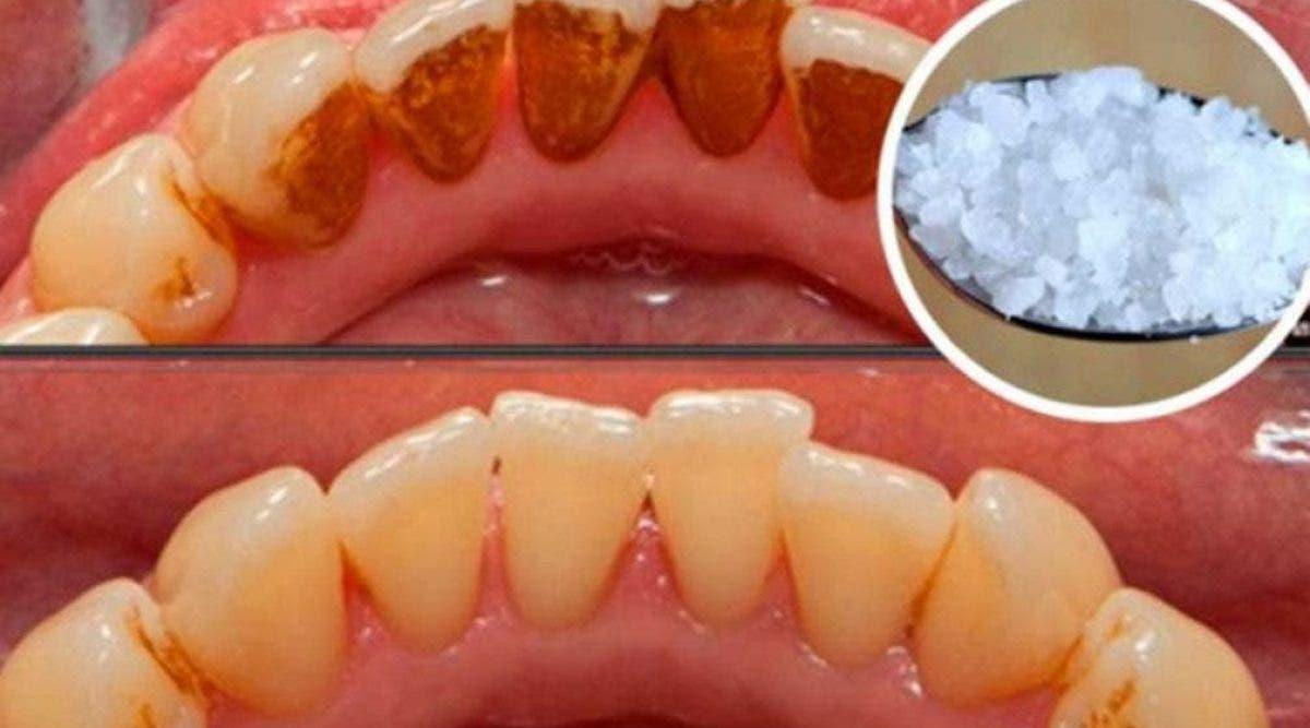 Voici une recette naturelle pour éliminer la plaque des dents naturellement !