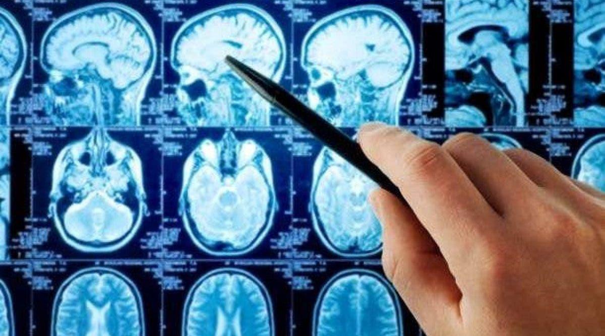 Votre cerveau possède un bouton supprimer