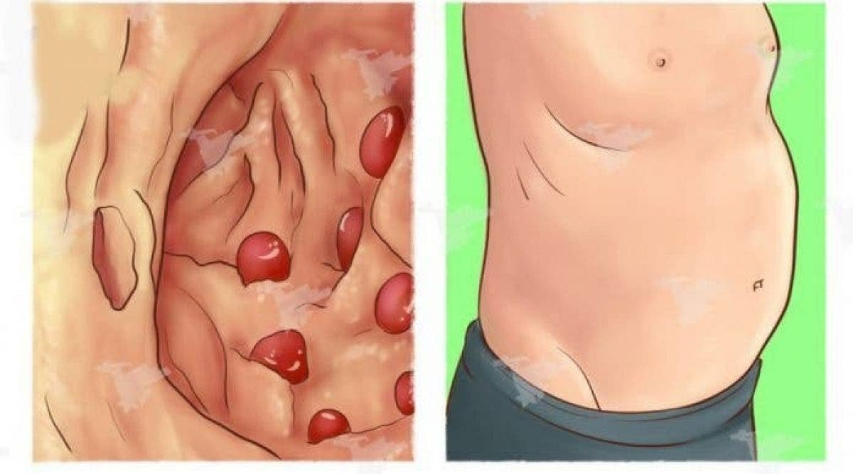 Votre estomac est gonflé ? Cela peut caché ces 7 graves maladies ! Faites attention