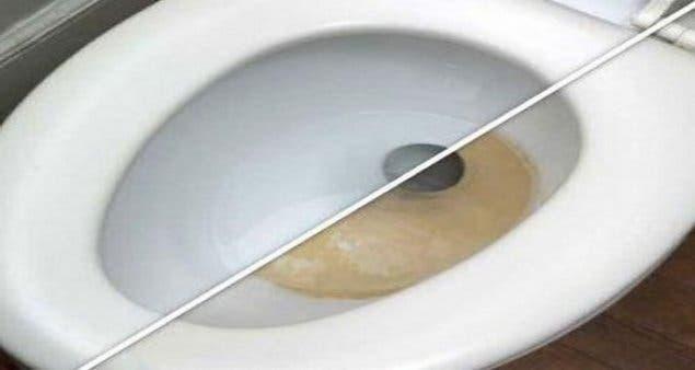 Vous n'aurez jamais à nettoyer vos toilettes de nouveau si vous utilisez ce produit de nettoyage