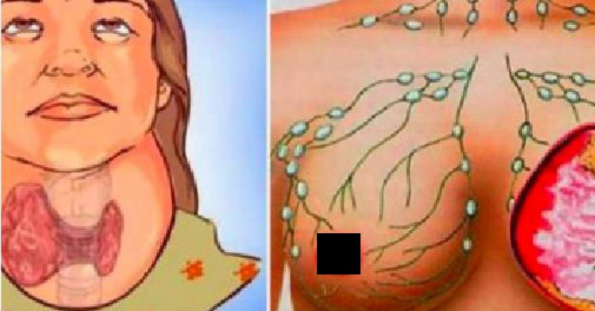 thyroïde