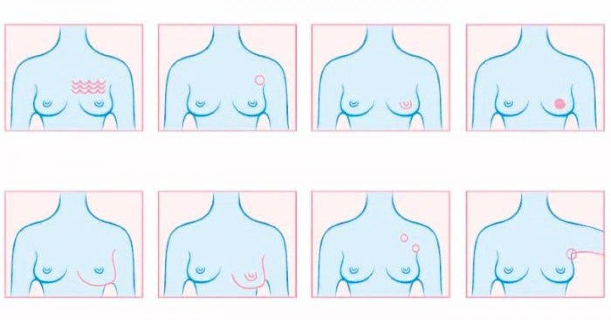 Warning Signs Breast Cancer 700x402 1 2