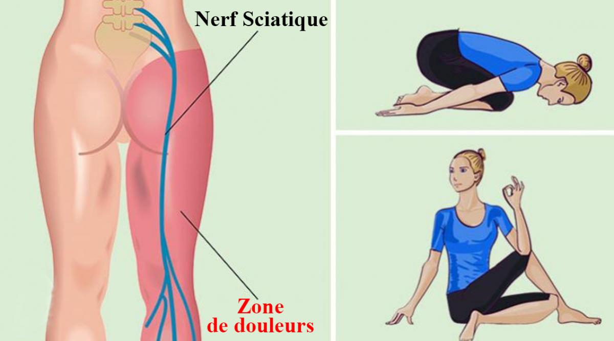 exercices pour soulager les douleurs de la sciatique