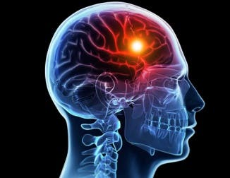 accidents vasculaires cerebraux