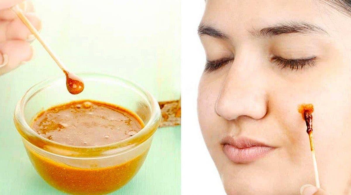 éliminer l'acné du visage