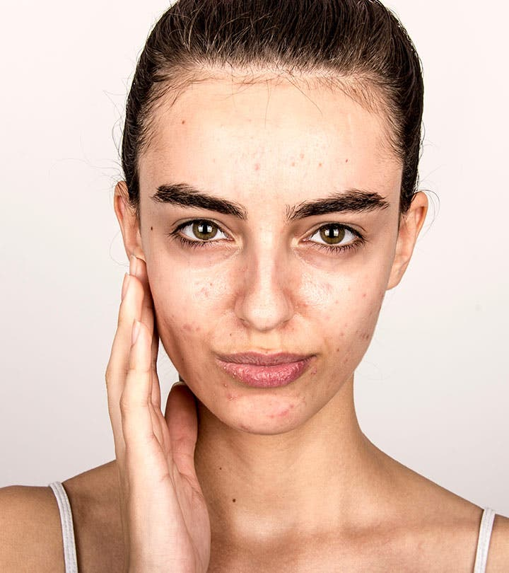 acne 5