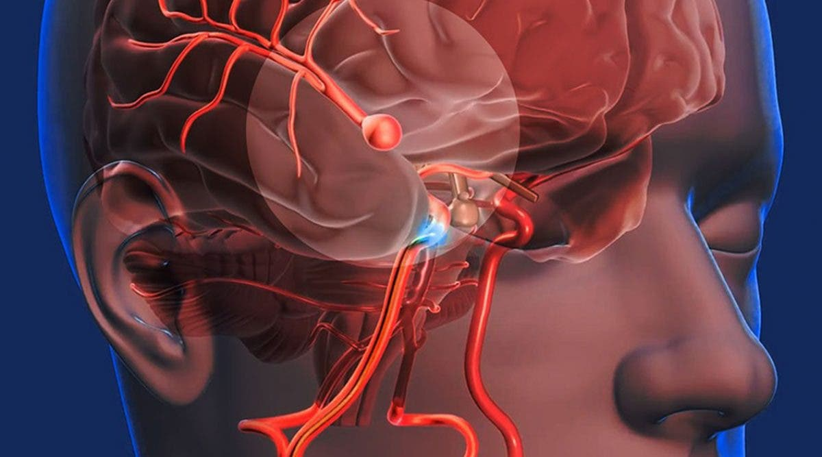 anevrisme-cerebral--lorsque-des-maux-de-tete-severes-peuvent-etre-tres-dangereux