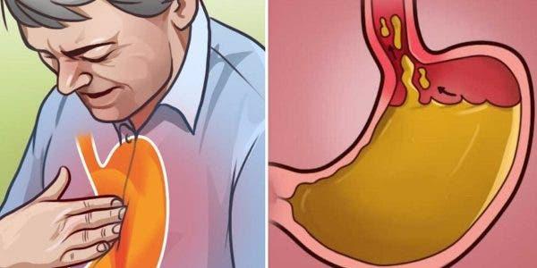 apprenez-a-eliminer-les-brulures-destomac-et-les-reflux-acides-avec-des-remedes-naturels