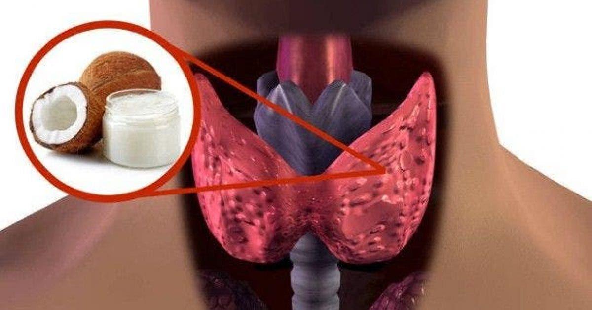 apres avoir lu cet article vous allez jeter a la poubelle vos medicaments antithyroidiens 2 1