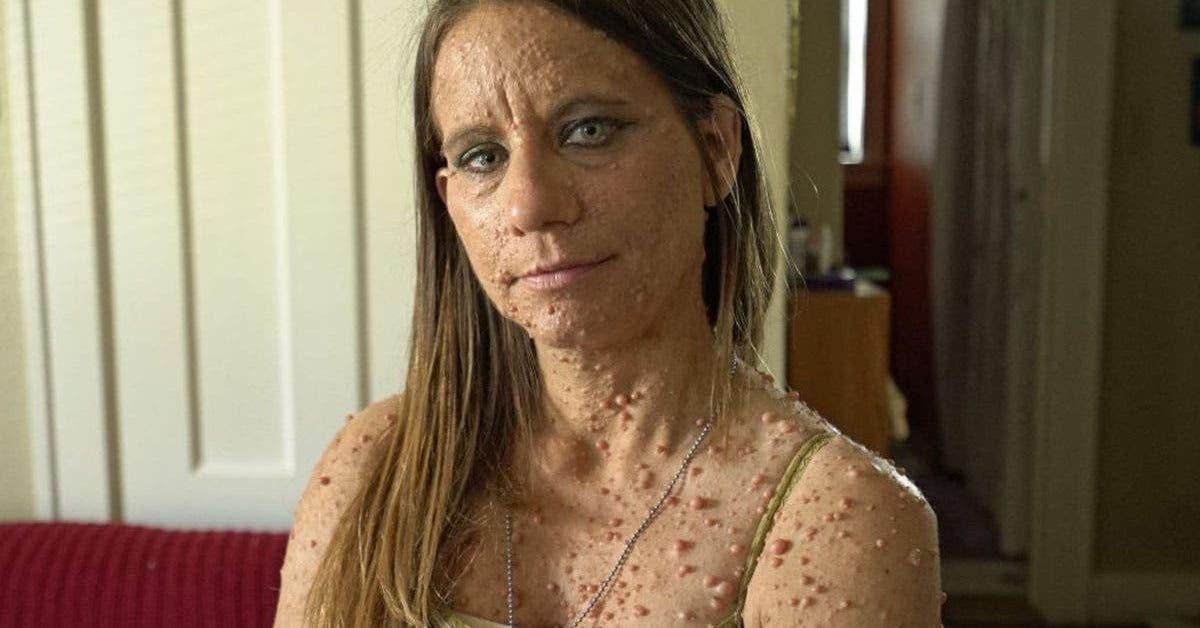 apres-avoir-subi-des-moqueries-cette-femme-se-fait-retirer-6000-tumeurs-sur-le-corps-et-devient-meconnaissable