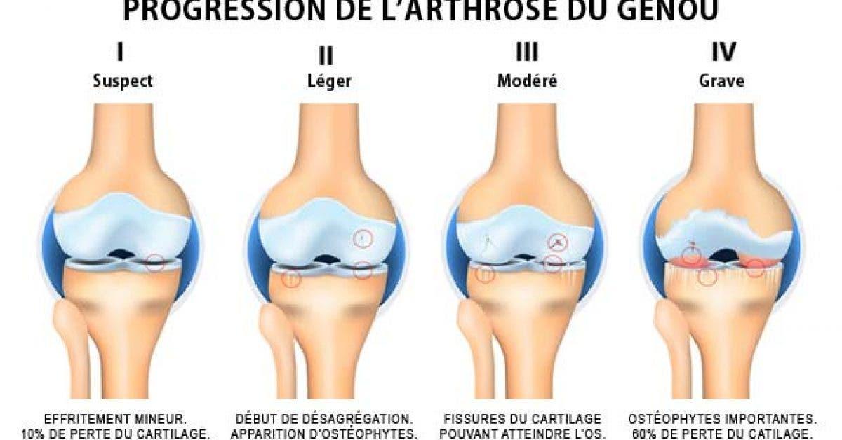 Le moyen le plus simple pour prévenir l'arthrose
