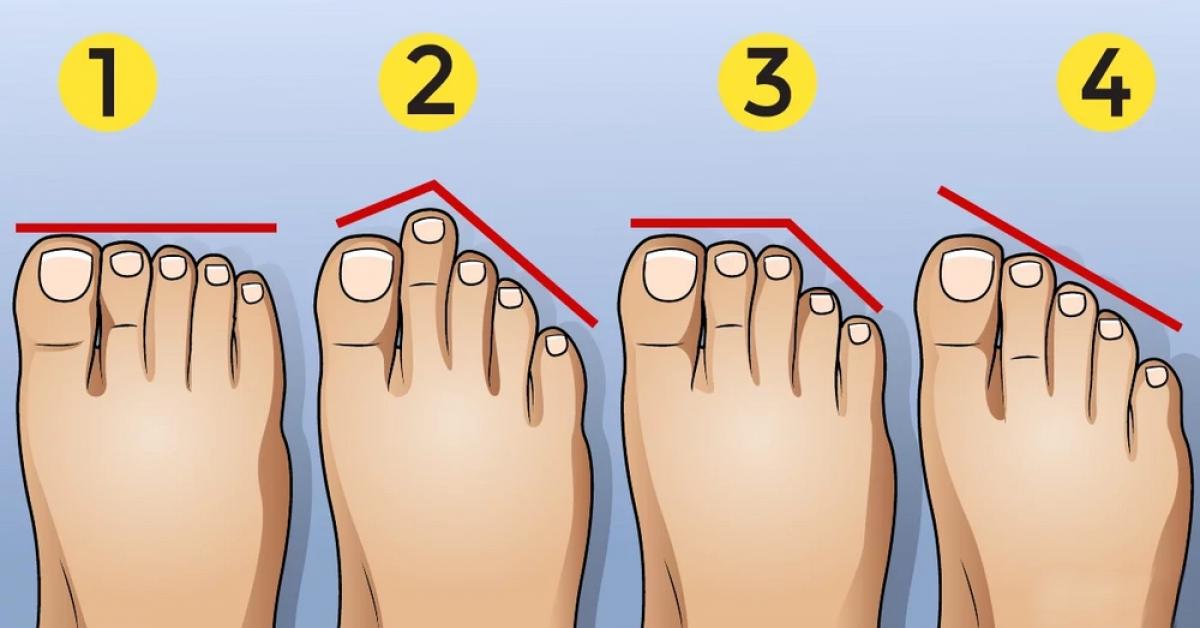 aspect des pieds