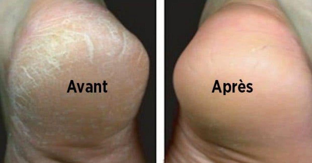 astuce naturelle pour traiter les pieds secs et fendilles2