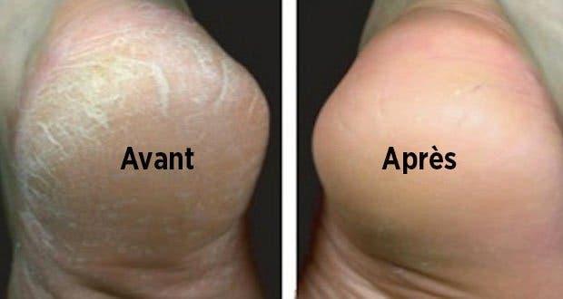 Astuce naturelle pour traiter les pieds secs et fendill s - Soins des pieds maison ...