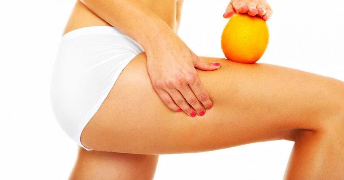 astuces pour eliminer cellulite naturellement 1