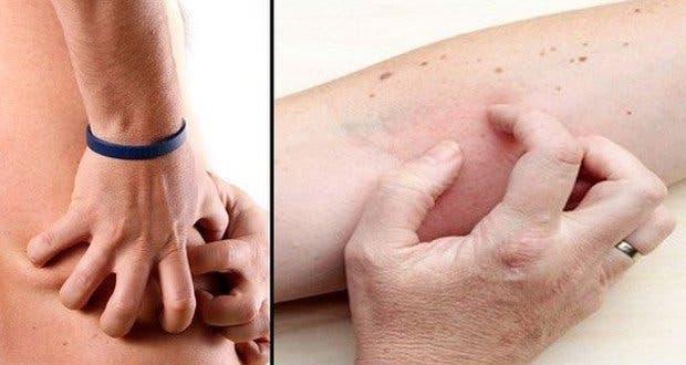 attention-4-symptomes-de-maladies-renales-que-vous-ne-devez-jamais-ignorer