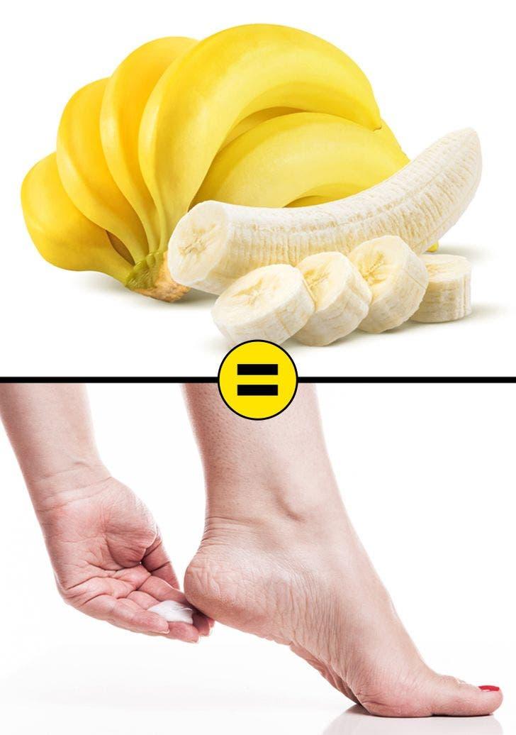 bananes 6