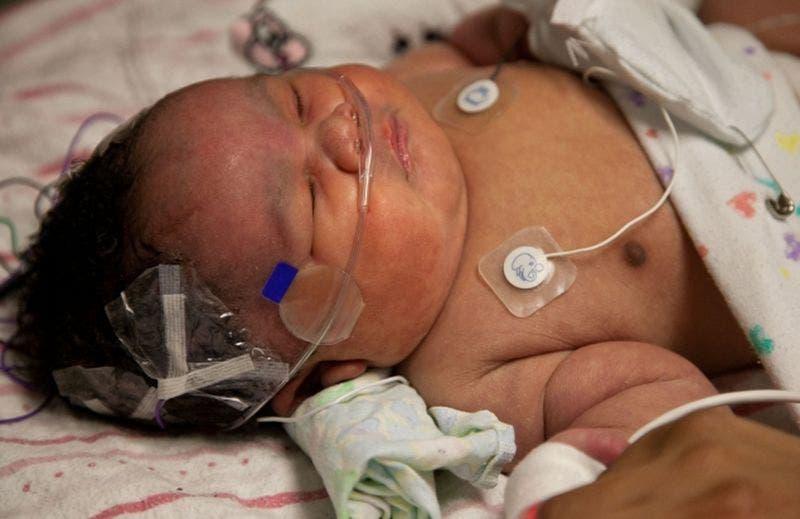 Déclaré mort, ce bébé revient à la vie après les prières de sa mère