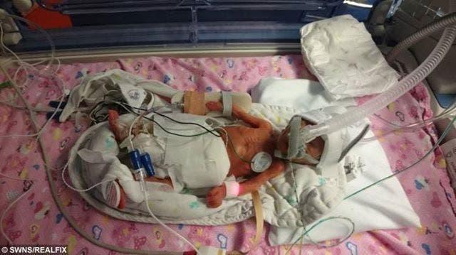 Ce bébé prématuré de 500 grammes
