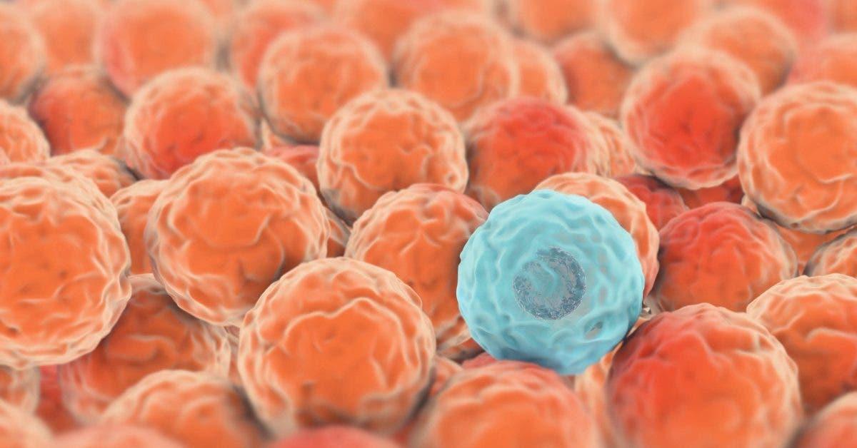 Voici comment reconnaître les signes d'un cancer