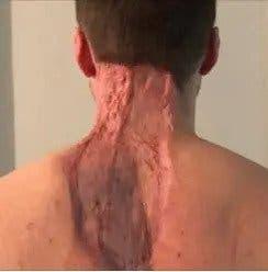 Cancer de peau