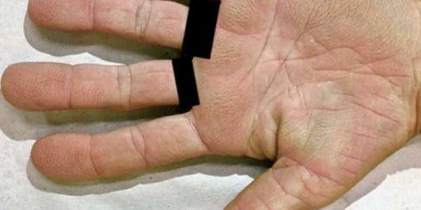 vos mains peuvent prédire si vous allez avoir un cancer